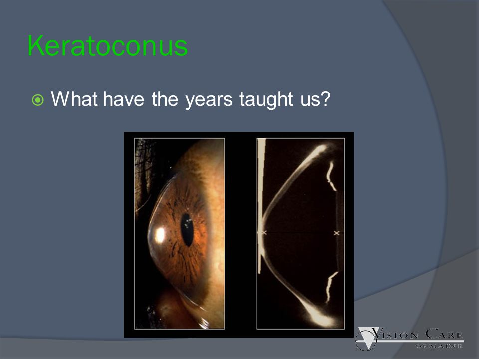 Keratoconus What have the years taught us Lawrence Gallomp