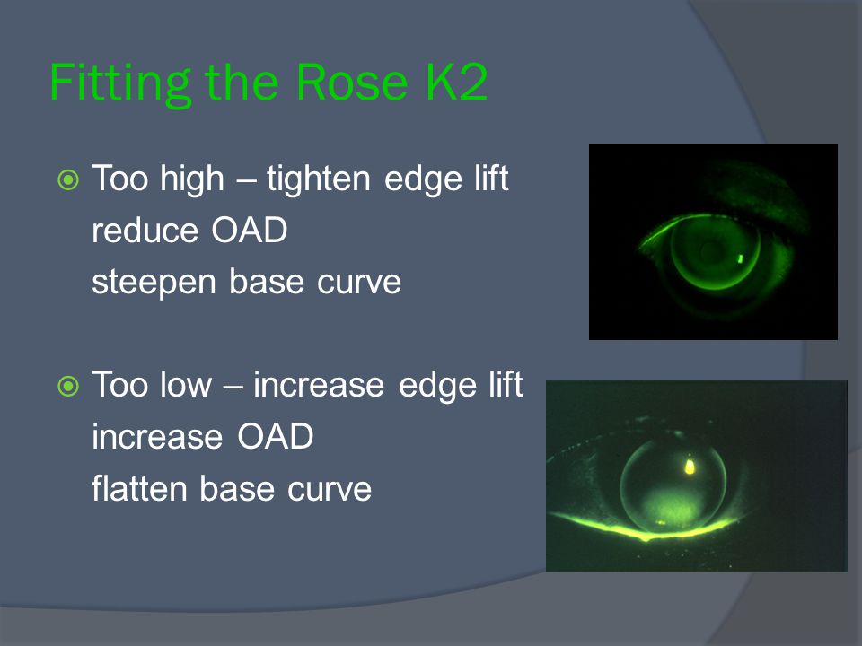 Fitting the Rose K2 Too high – tighten edge lift reduce OAD