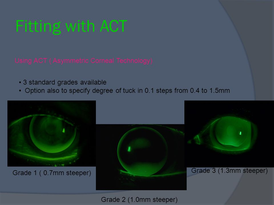 Fitting with ACT Using ACT ( Asymmetric Corneal Technology)