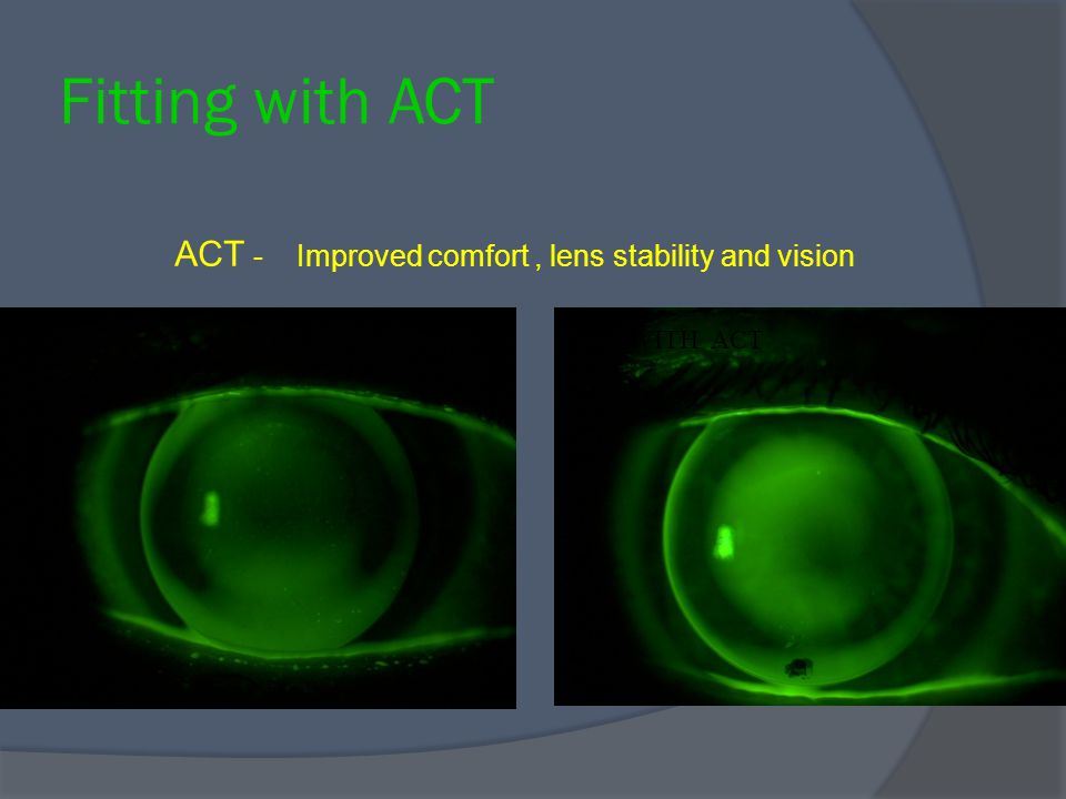 Fitting with ACT ACT - Improved comfort , lens stability and vision