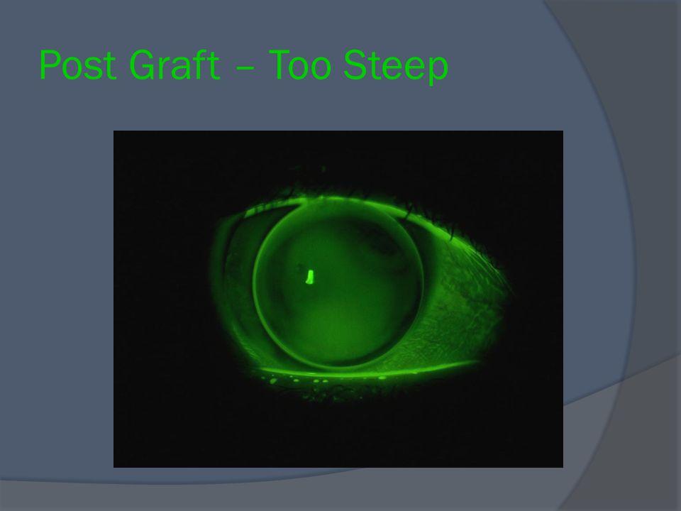 Post Graft – Too Steep