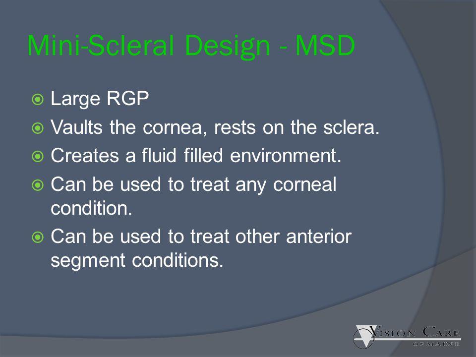 Mini-Scleral Design - MSD