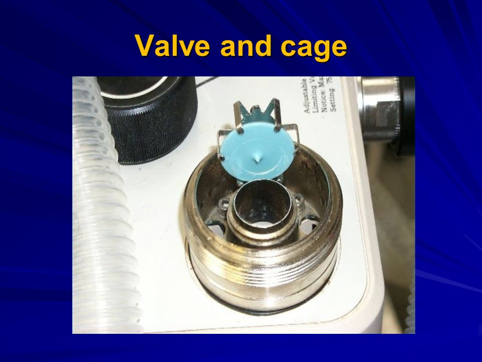 Valve and cage