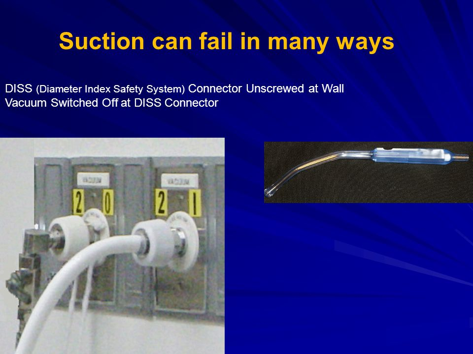 Suction can fail in many ways
