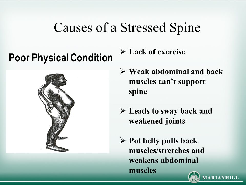 Causes of a Stressed Spine