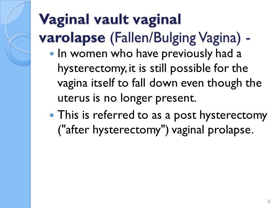 Vaginal vault vaginal varolapse (Fallen/Bulging Vagina) -