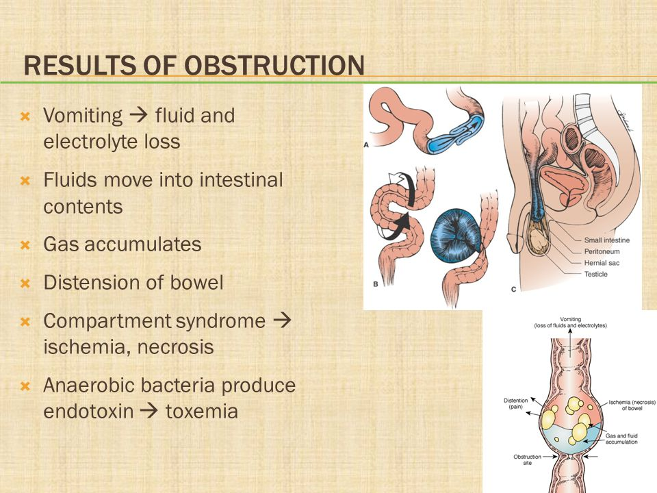 Results of Obstruction