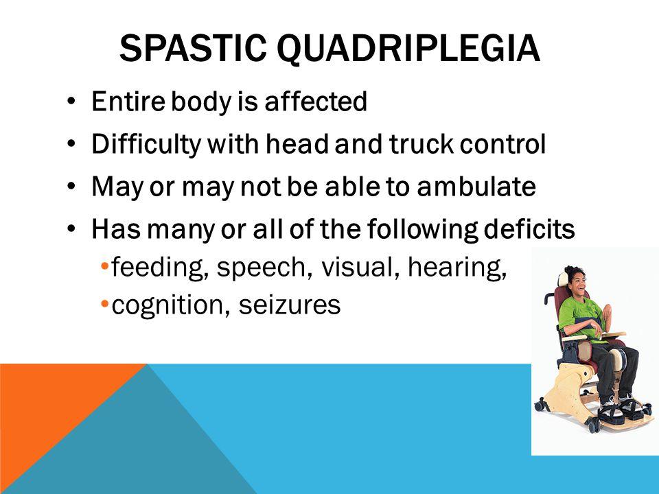 Spastic quadriplegia Entire body is affected