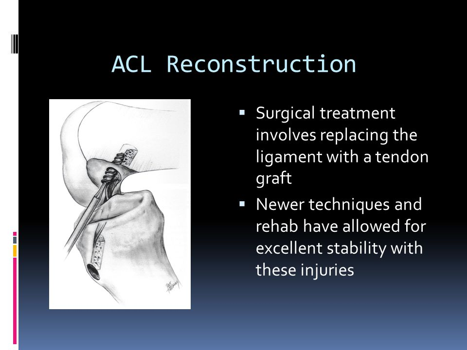 ACL Reconstruction Surgical treatment involves replacing the ligament with a tendon graft.