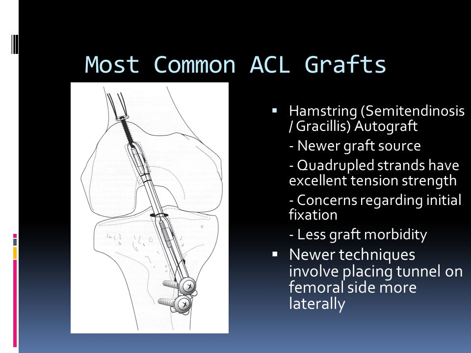 Most Common ACL Grafts Hamstring (Semitendinosis / Gracillis) Autograft. - Newer graft source.