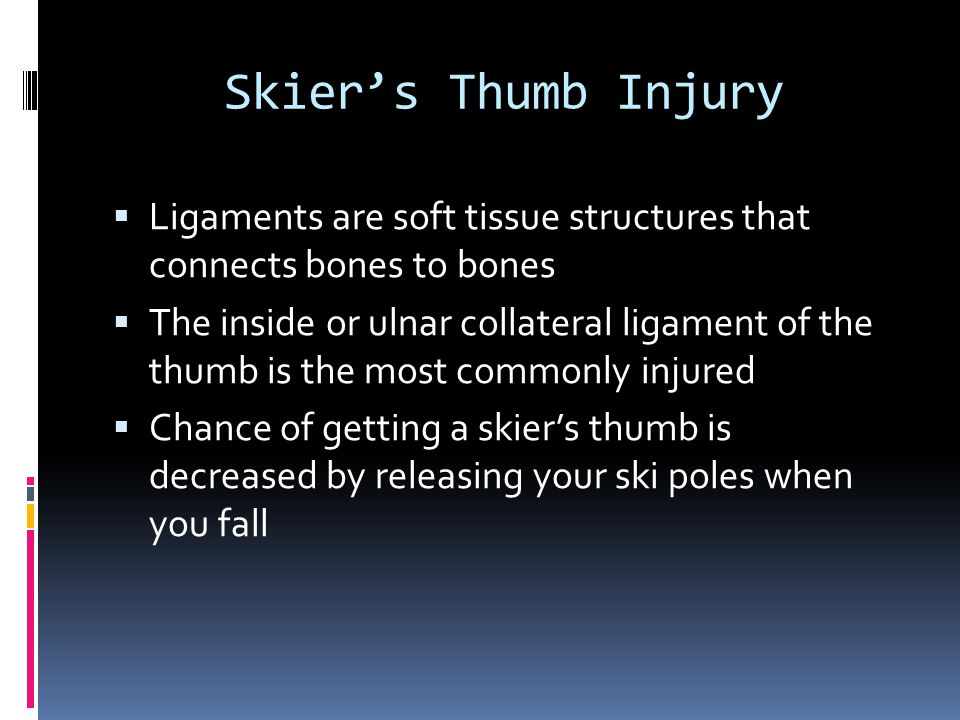 Skier's Thumb Injury Ligaments are soft tissue structures that connects bones to bones.