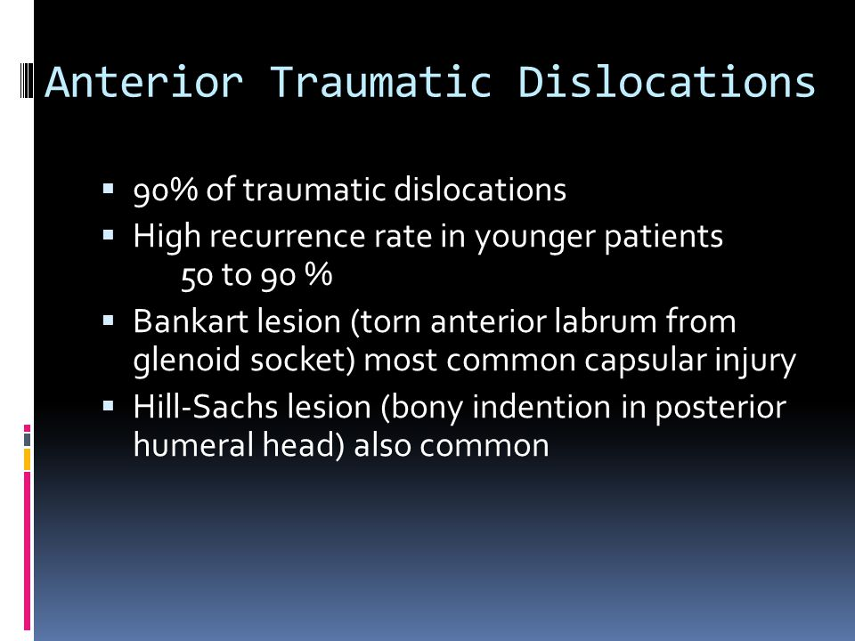 Anterior Traumatic Dislocations
