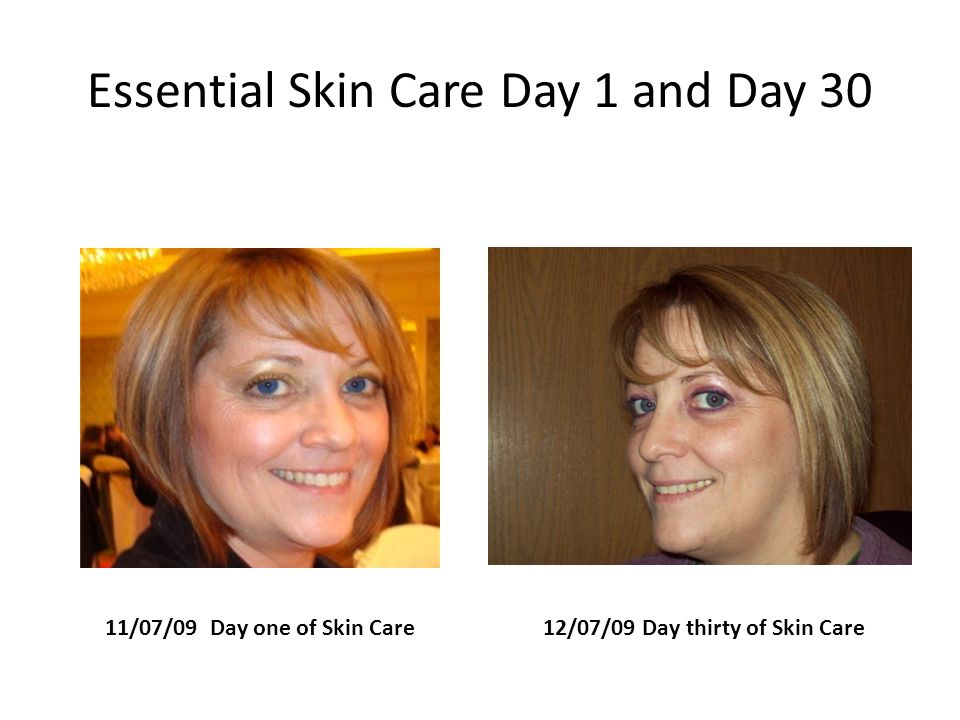 Essential Skin Care Day 1 and Day 30