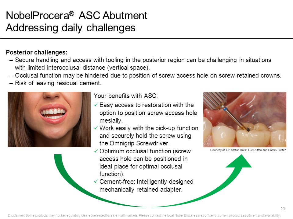NobelProcera® ASC Abutment Addressing daily challenges