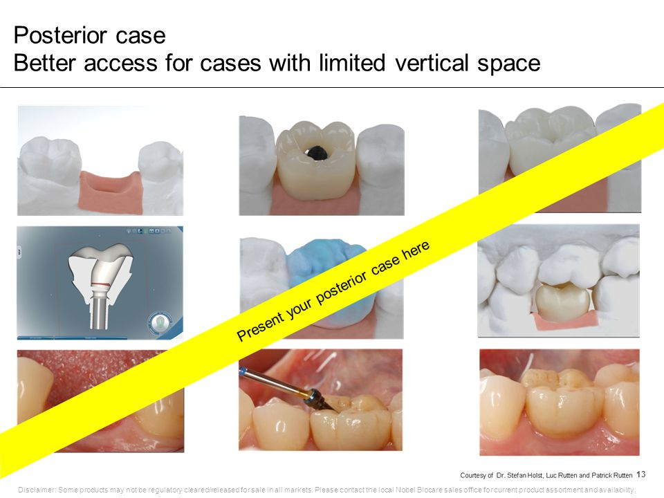 Posterior case Better access for cases with limited vertical space