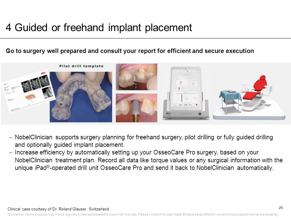 4 Guided or freehand implant placement