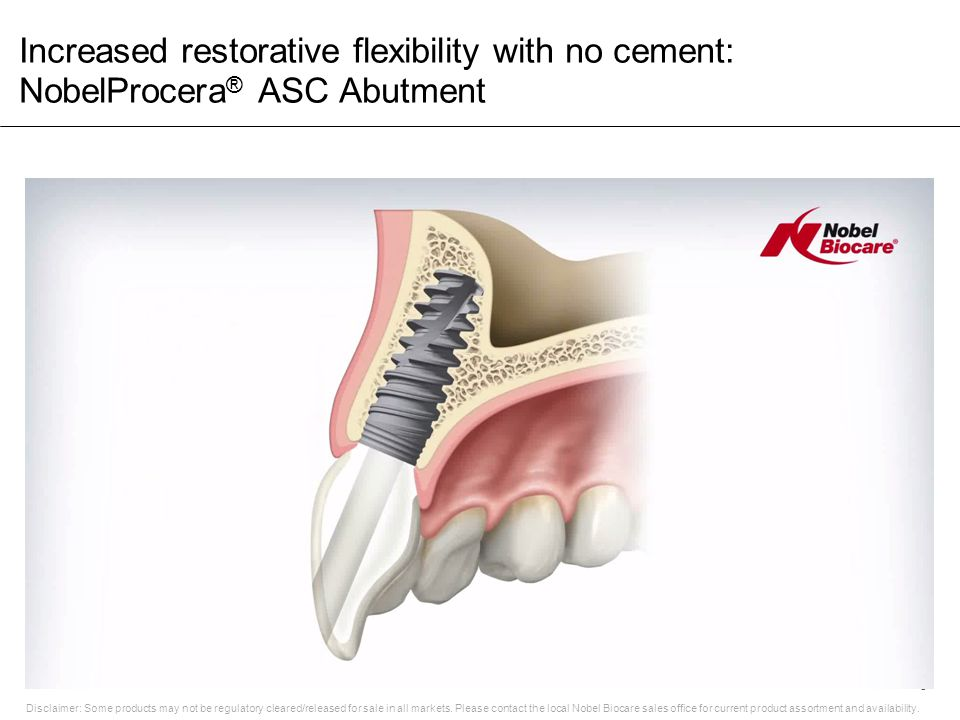 Increased restorative flexibility with no cement: NobelProcera® ASC Abutment