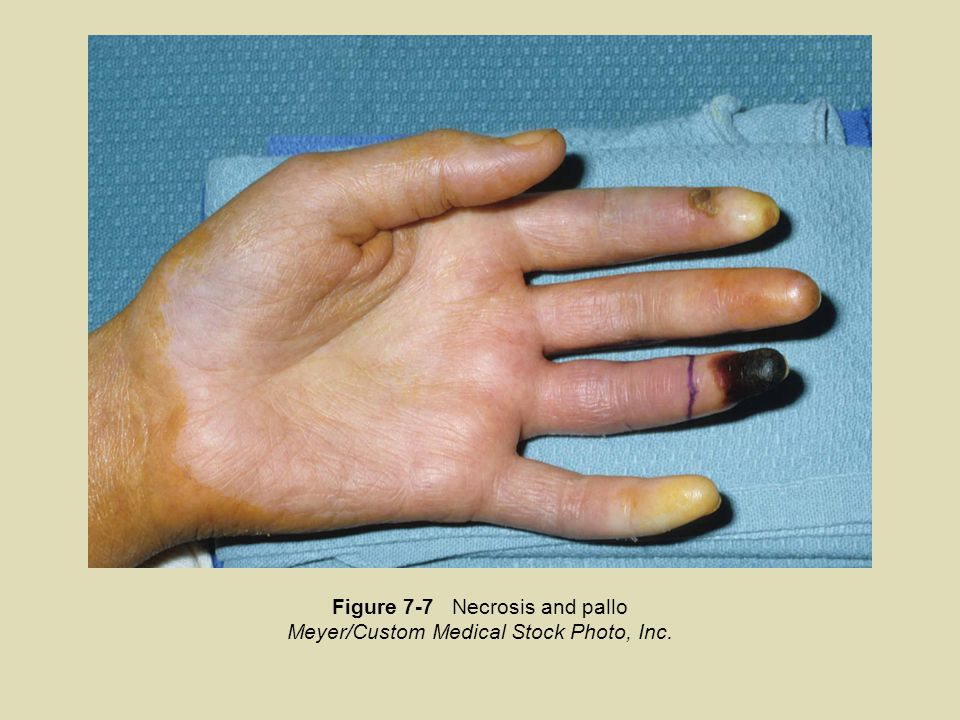 Figure 7-7 Necrosis and pallo Meyer/Custom Medical Stock Photo, Inc.