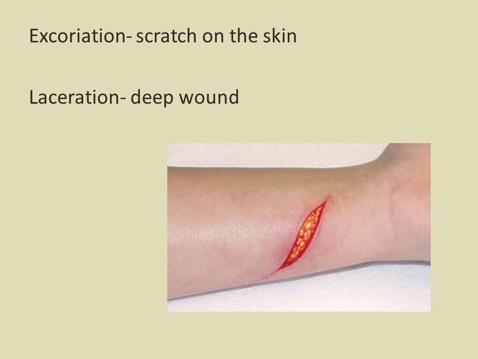 Excoriation- scratch on the skin Laceration- deep wound