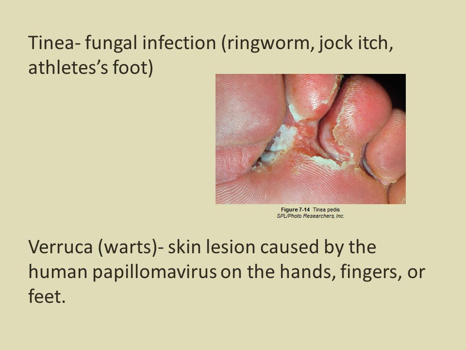 Tinea- fungal infection (ringworm, jock itch, athletes's foot) Verruca (warts)- skin lesion caused by the human papillomavirus on the hands, fingers, or feet.