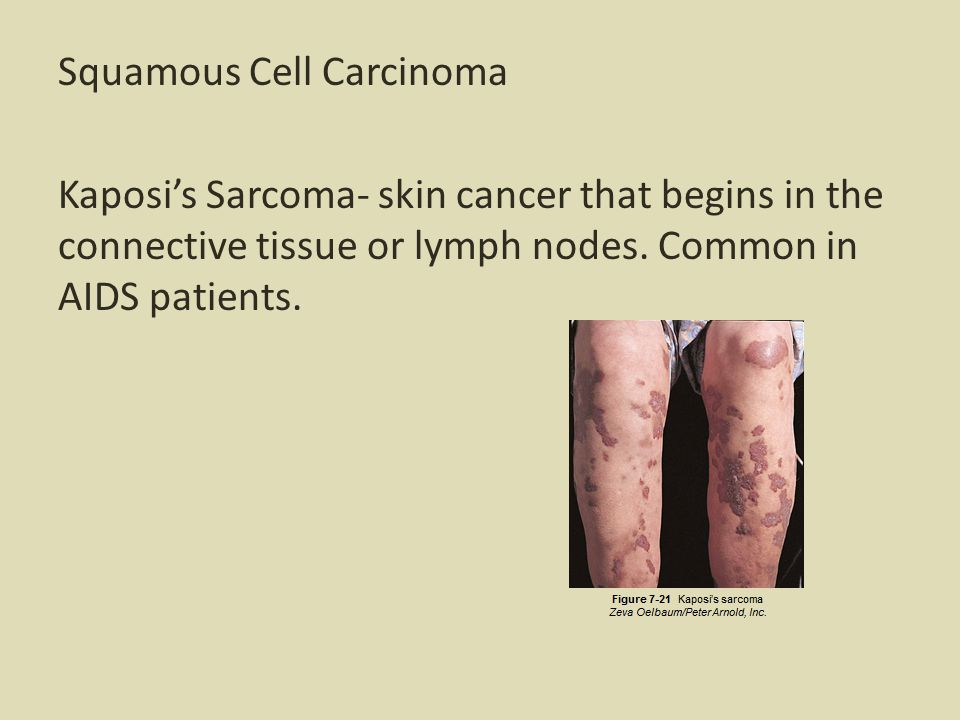 Squamous Cell Carcinoma Kaposi's Sarcoma- skin cancer that begins in the connective tissue or lymph nodes.