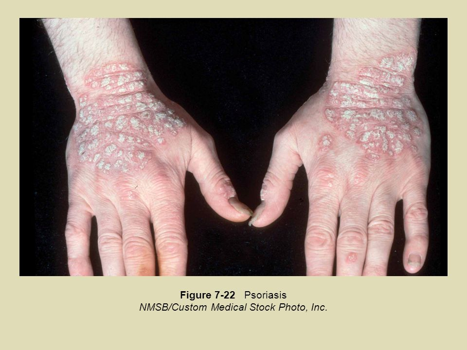 NMSB/Custom Medical Stock Photo, Inc.