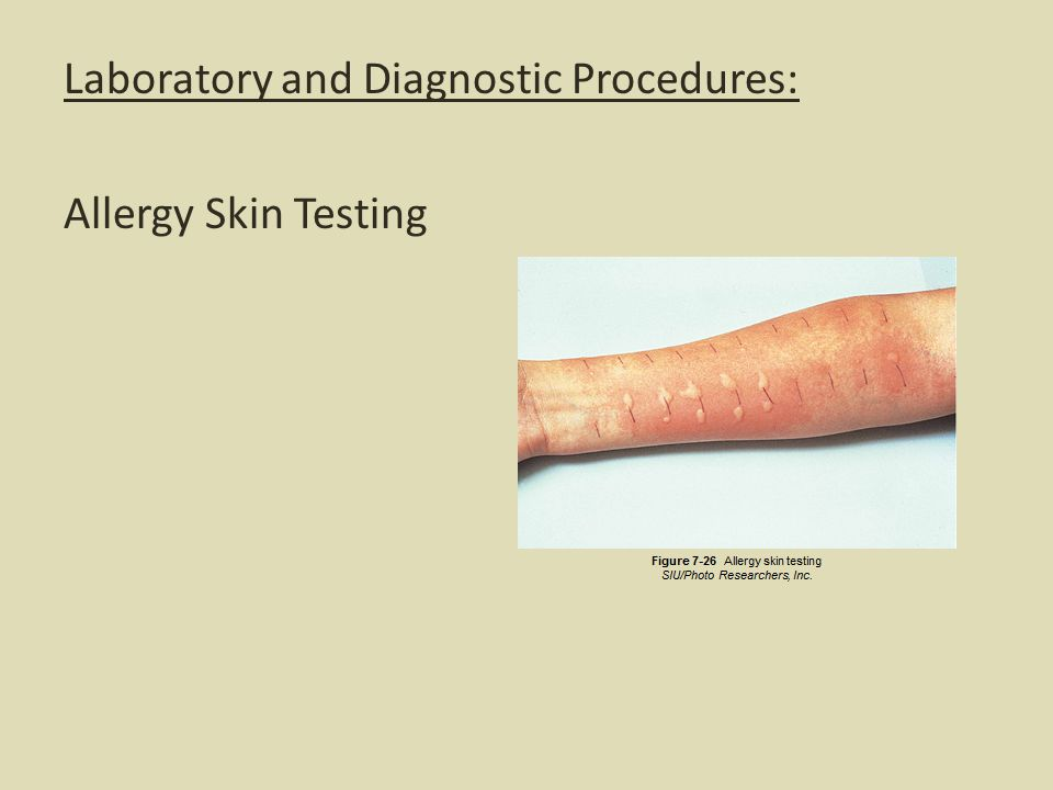 Laboratory and Diagnostic Procedures: Allergy Skin Testing