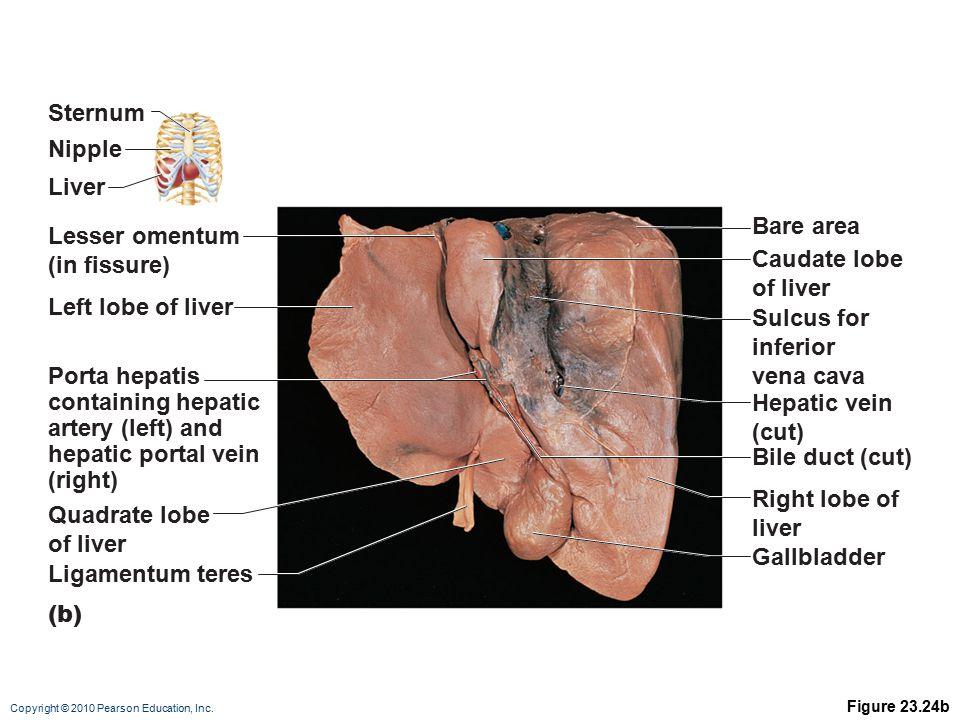 Sternum Nipple Liver Bare area Lesser omentum (in fissure)