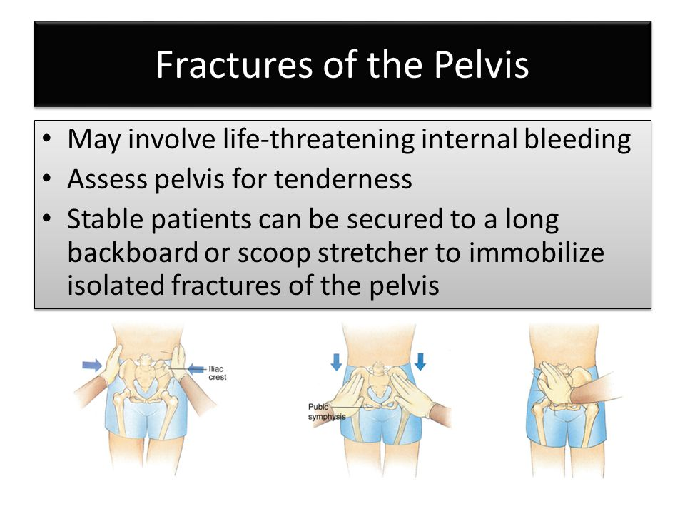 Fractures of the Pelvis
