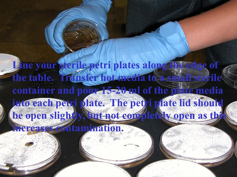Line your sterile petri plates along the edge of the table