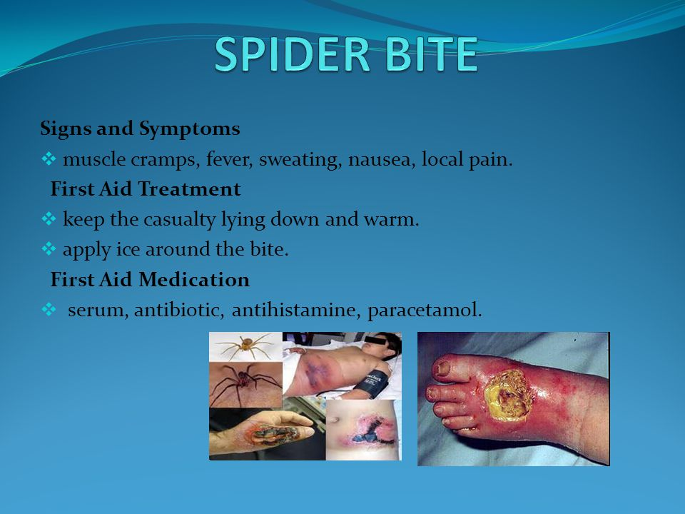 SPIDER BITE Signs and Symptoms