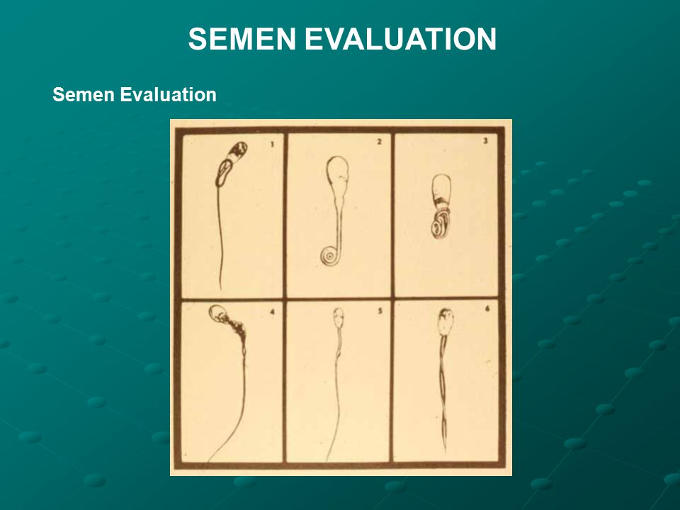 SEMEN EVALUATION Semen Evaluation