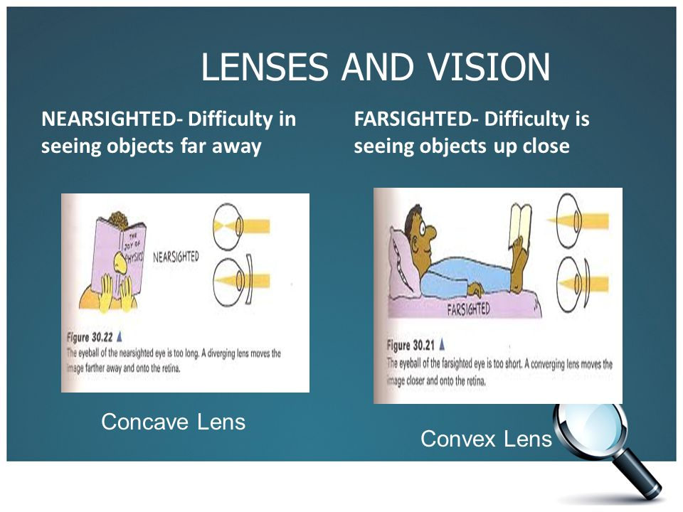LENSES AND VISION NEARSIGHTED- Difficulty in seeing objects far away