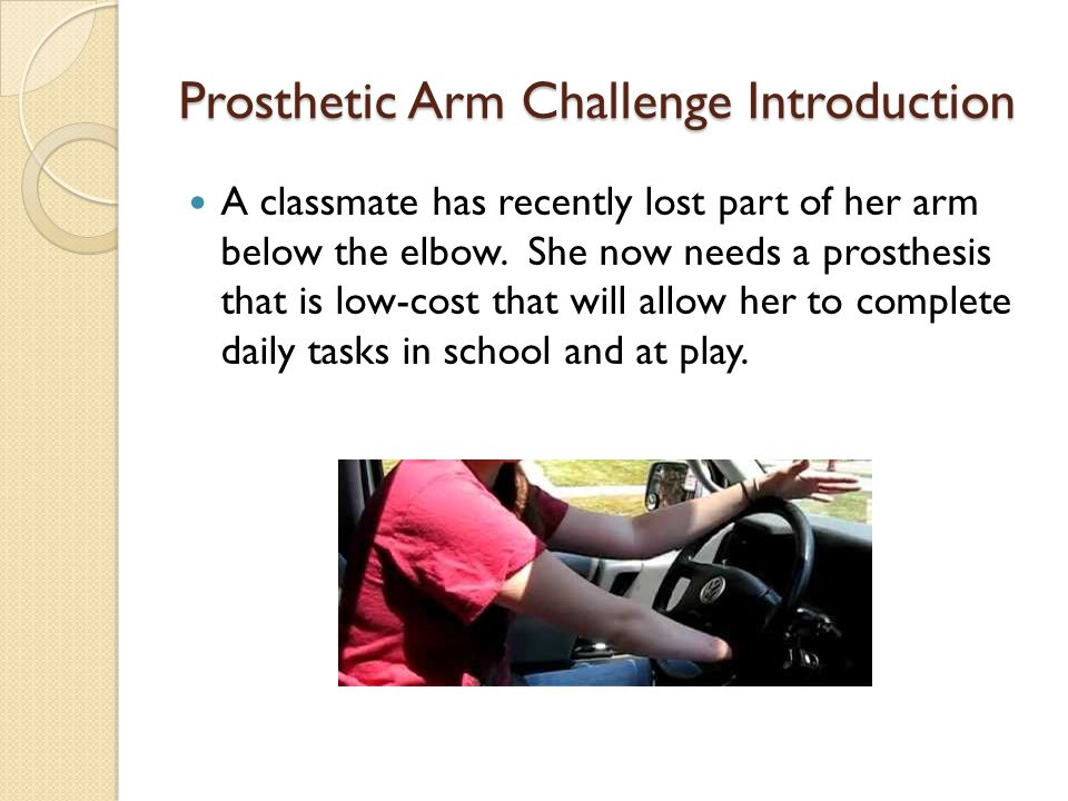 Prosthetic Arm Challenge Introduction