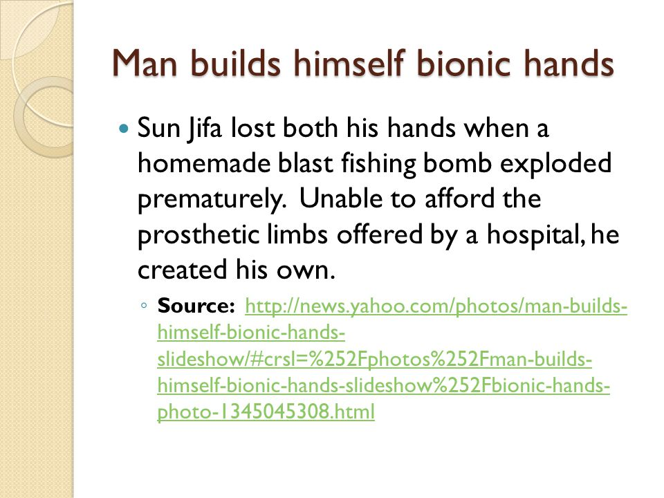 Man builds himself bionic hands