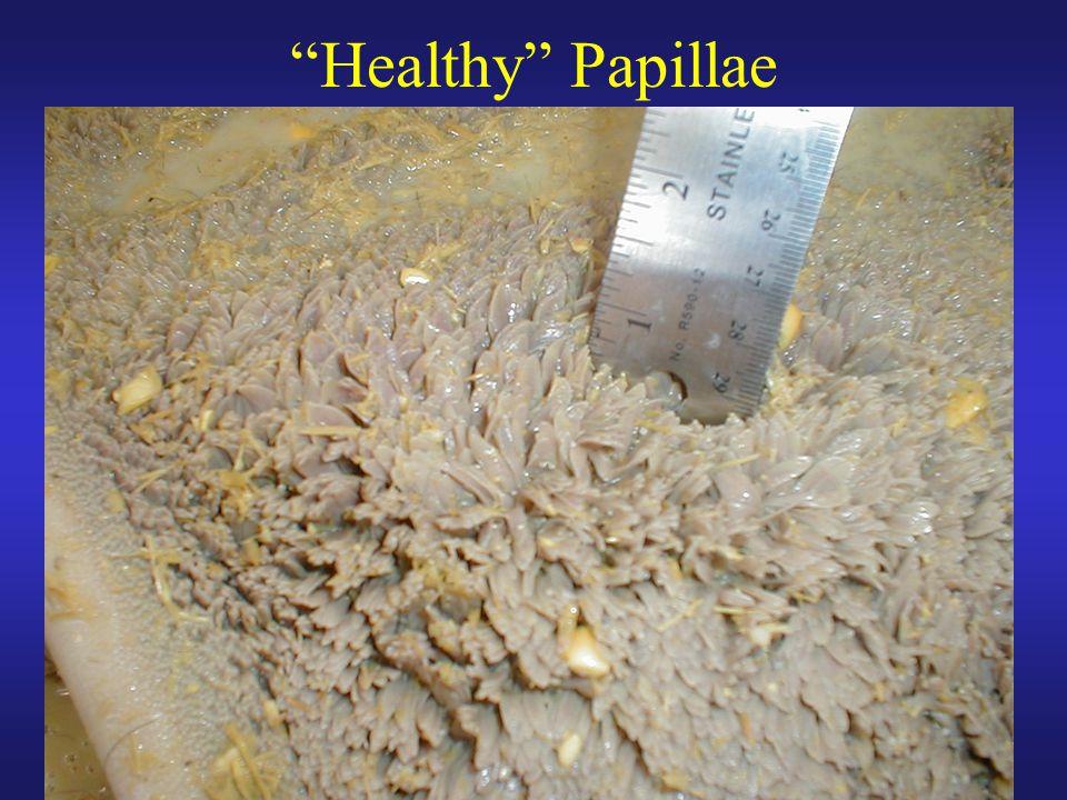 Healthy Papillae