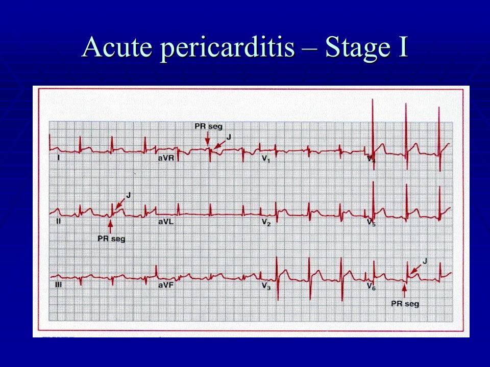 Acute pericarditis – Stage I
