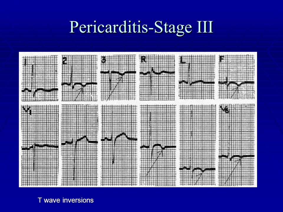 Pericarditis-Stage III