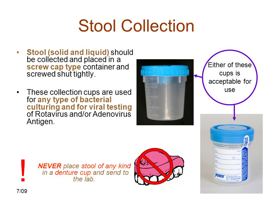 Stool Collection Stool (solid and liquid) should be collected and placed in a screw cap type container and screwed shut tightly.
