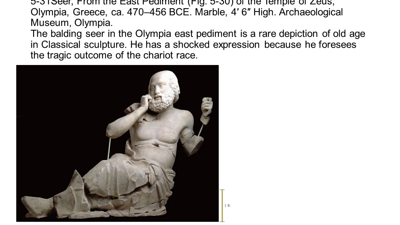 5-31Seer, From the East Pediment (Fig