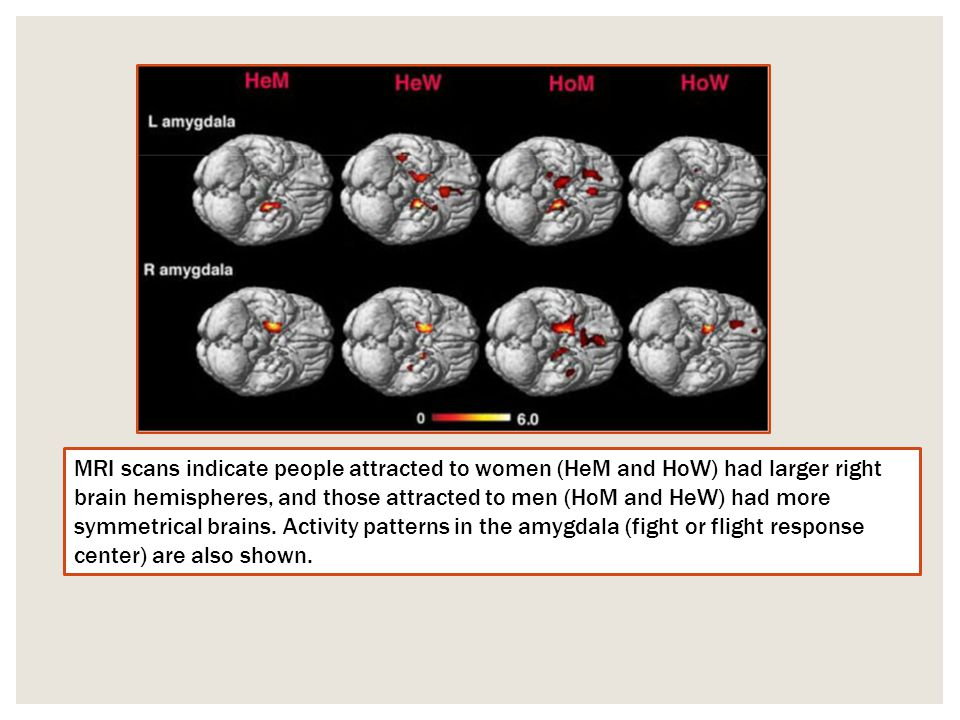 MRI scans indicate people attracted to women (HeM and HoW) had larger right brain hemispheres, and those attracted to men (HoM and HeW) had more symmetrical brains.