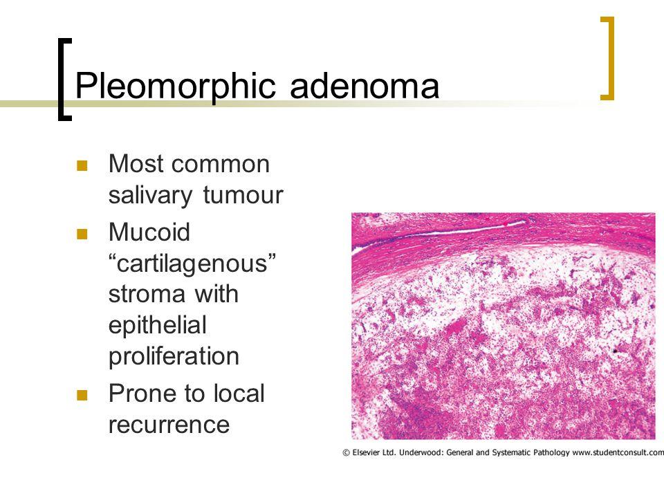 Pleomorphic adenoma Most common salivary tumour