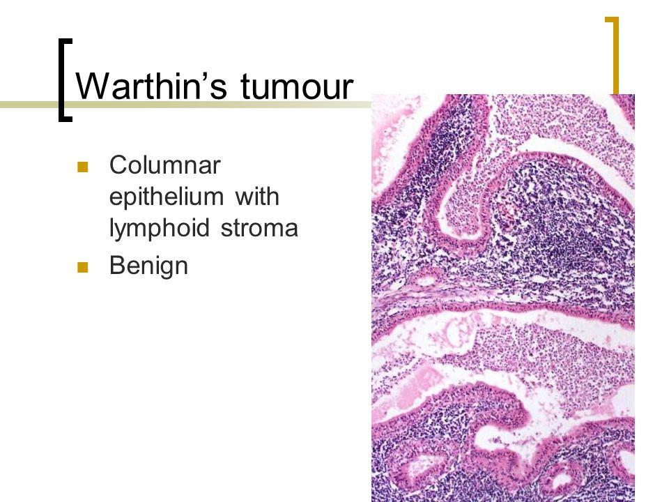 Warthin's tumour Columnar epithelium with lymphoid stroma Benign