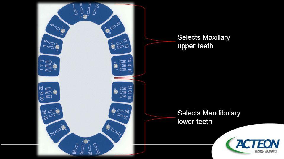 Selects Maxillary upper teeth