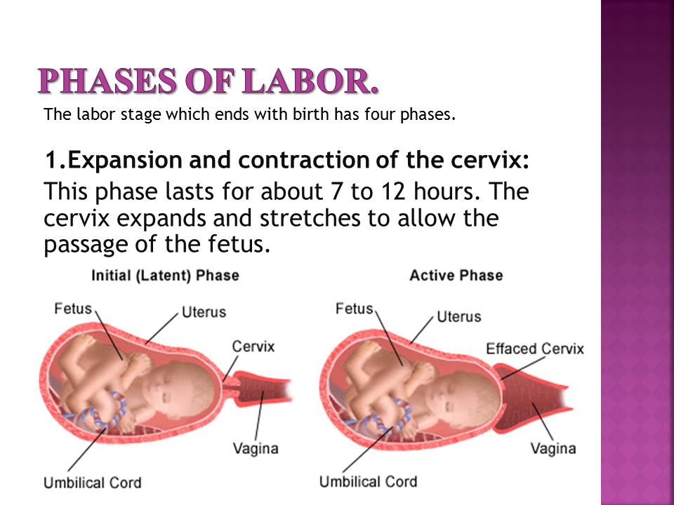 Phases of labor. The labor stage which ends with birth has four phases.