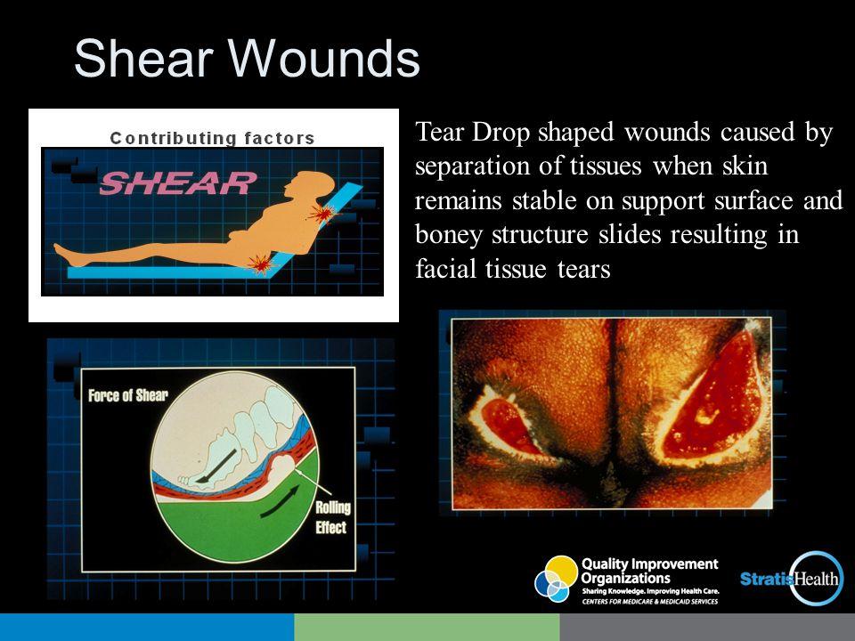 Shear Wounds