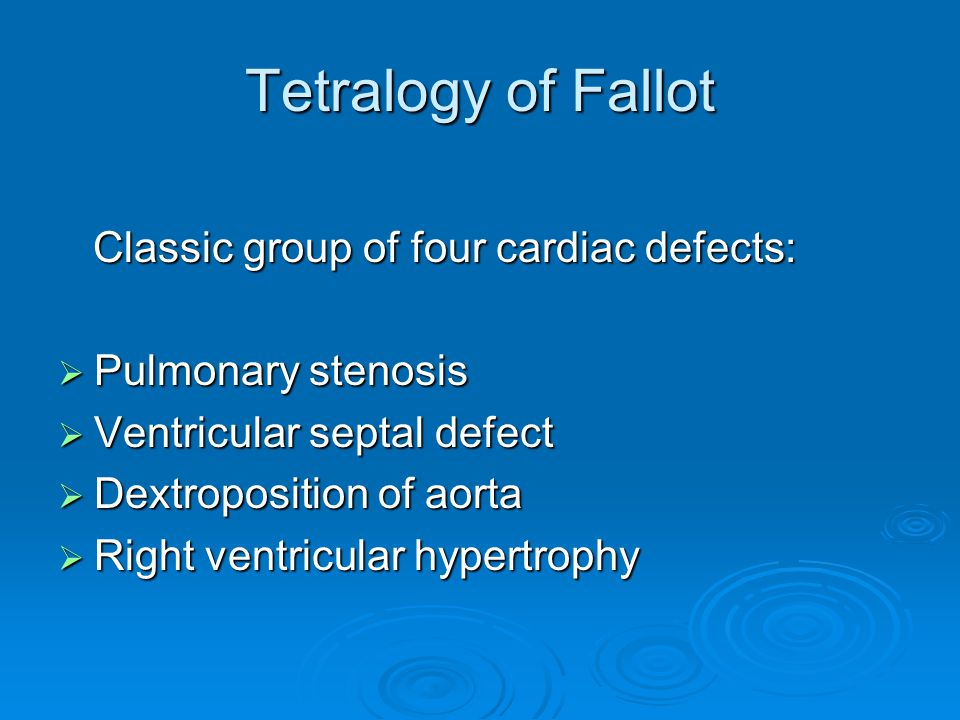 Tetralogy of Fallot Classic group of four cardiac defects: