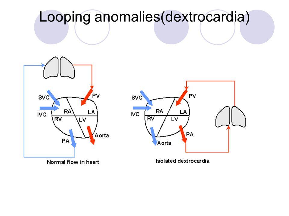 Looping anomalies(dextrocardia)