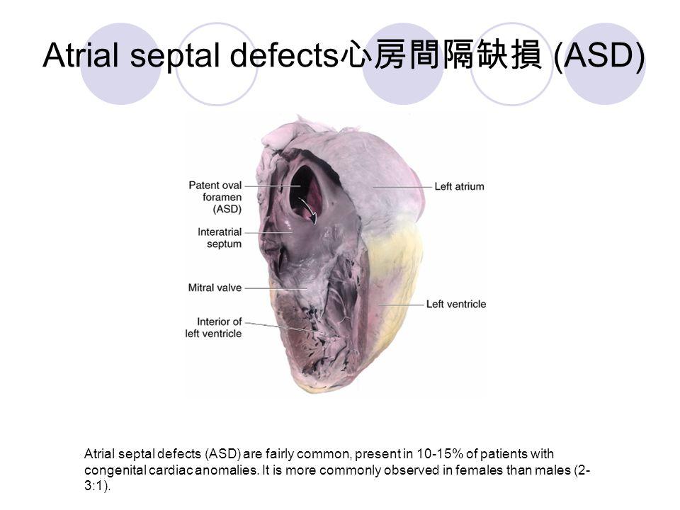 Atrial septal defects心房間隔缺損 (ASD)