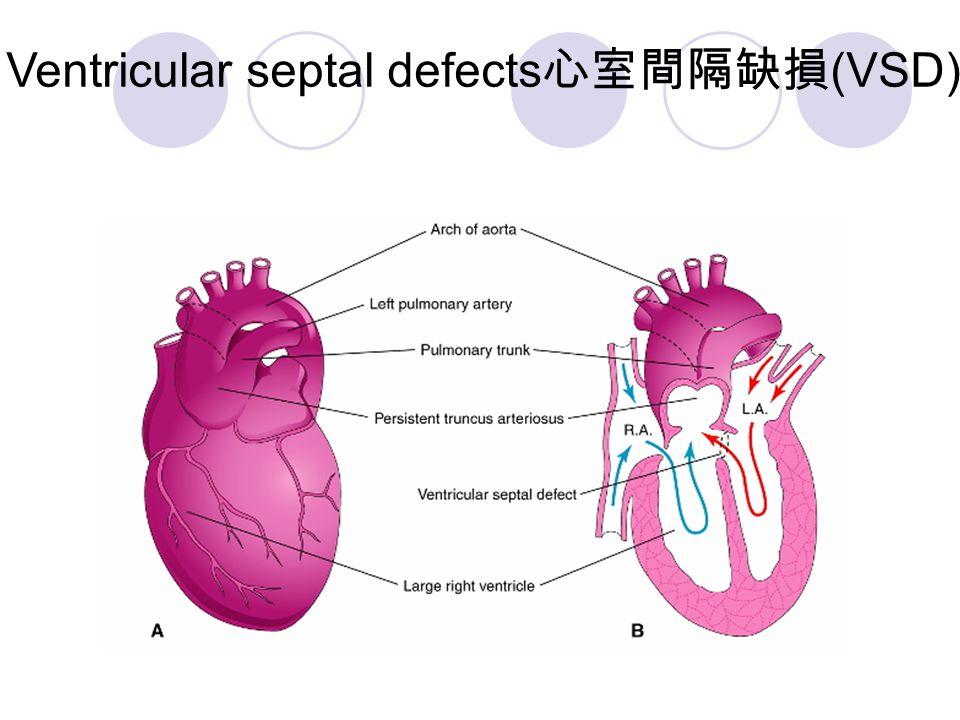 Ventricular septal defects心室間隔缺損(VSD)